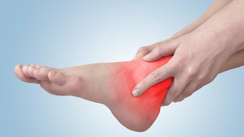Chân sưng đau, tím tái sau 2 tháng tháo bột bong gân cổ chân có sao không?   Vinmec